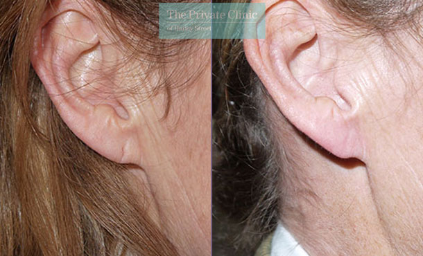 earlobe repair surgery before after photo results uk mr miles berry 014MB