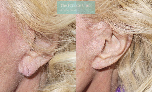 earlobe splitting repair before after photo london results mr miles berry 015MB