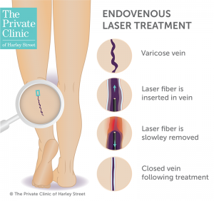 endovenous laser ablation evla treatment varicose veins insurance cost self pay 300x282 1