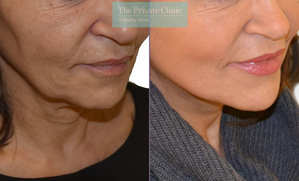 facelift face lift surgery london before after photo results mr roberto uccellini 013RU