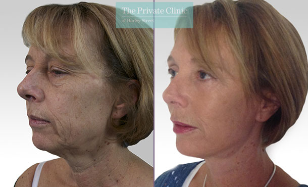 facelift face lift surgery rhytidectomy before after photo results mr roberto uccellini angle 012RU