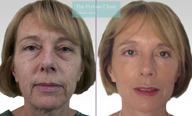 facelift surgery before after photos uk 60 years old results mr roberto uccellini front 012RU