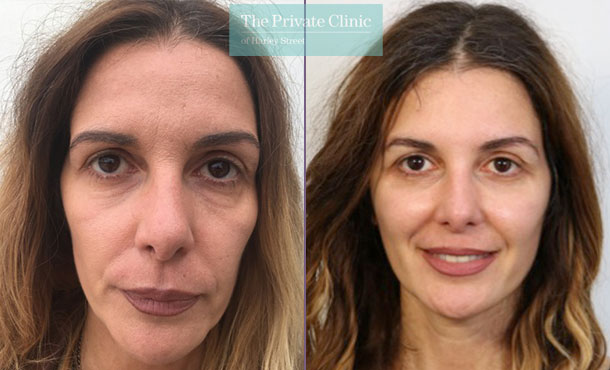 facelift surgical face lift surgery before after photo london results mr roberto uccellini 015RU