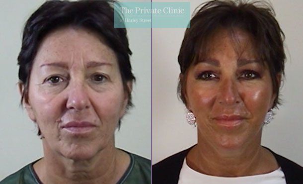facelift surgical face lift surgery before after photos results mr roberto uccellini 014RU