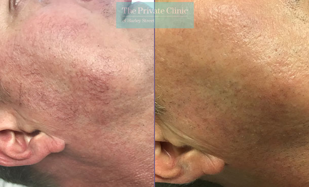 facial thread veins before after photo results 001SS