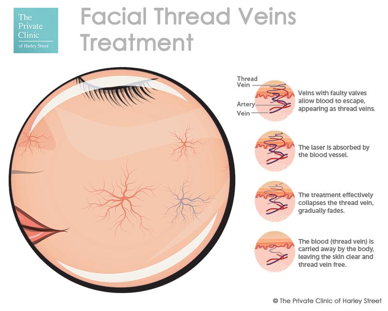 facial veins treatment thread veins face cutera coolglide ndyag laser treatment web