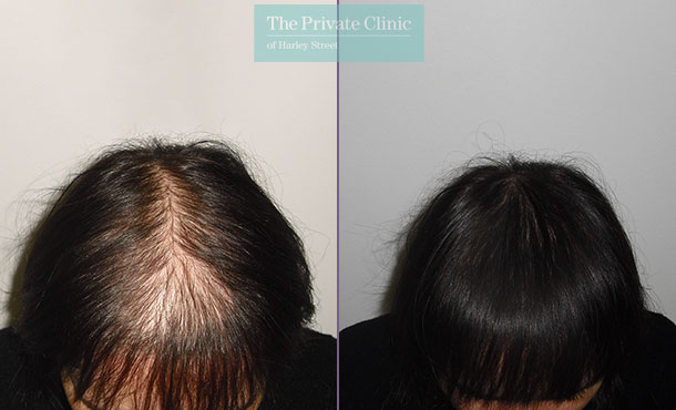 female fue hair transplant before after photo london results dr luca de fazio 009LDF