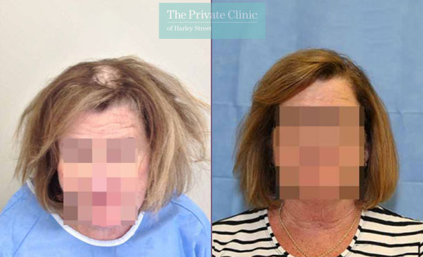 female fue hair transplant before after photos results dr raghu reddy front 010RR