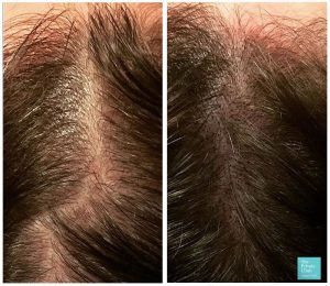 female hair loss micropigmentation before after results 001 300x260 1