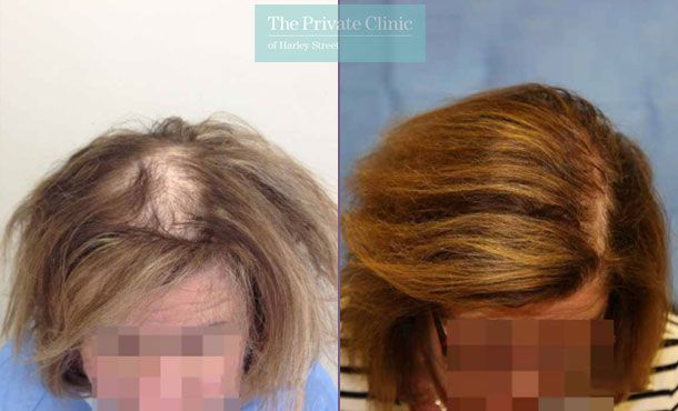 female hair transplant london before after photo results dr raghu reddy top 010RR