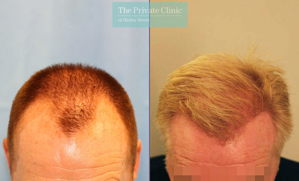 fhair transplant london before after photo results dr raghu reddy 067RR