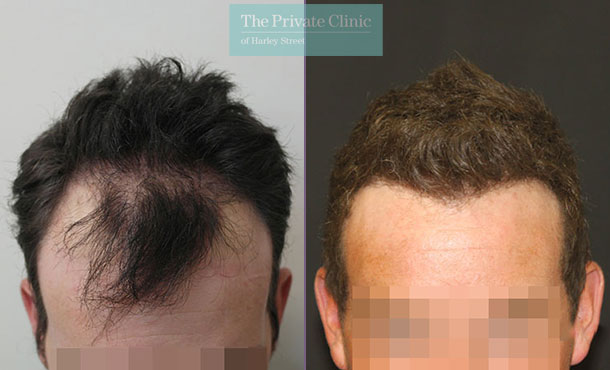 follicular unit extraction fue hair transplant before after photos london dr raghu reddy 013RR front