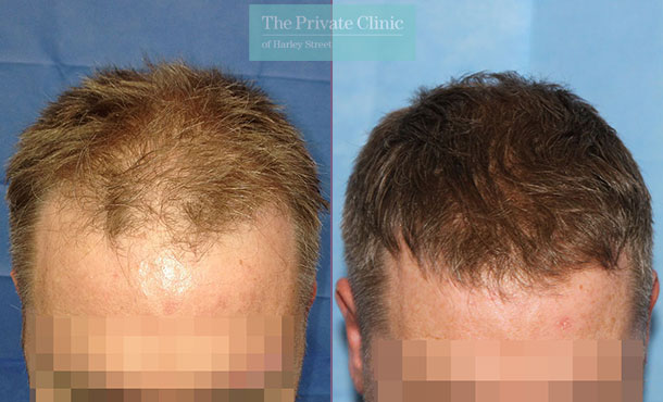 follicular unit extraction fue hair transplant harley street before after photos dr raghu reddy front 097RR