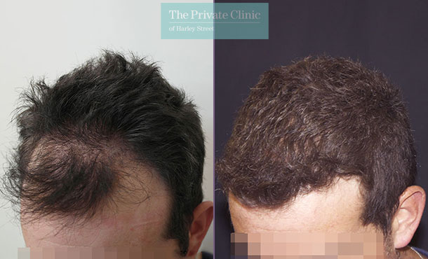 follicular unit extraction fue hair transplant london before after photo results dr raghu reddy 013RR side