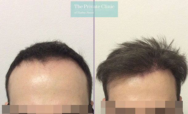 follicular unit extraction hair transplant before after photo results dr luca de fazio 005LDF