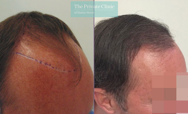 follicular unit extraction hair transplant before after photo results mr michael mouzakis side 005MM