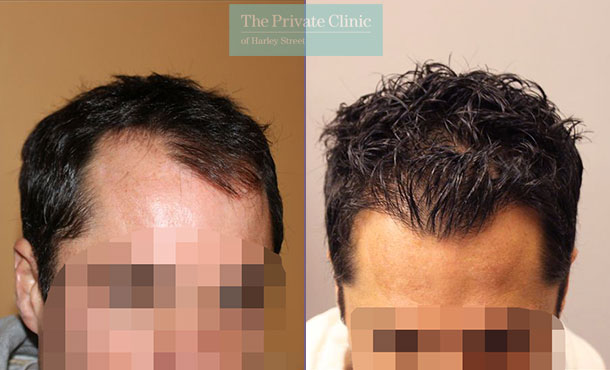 follicular unit transplantation fue before after photos dr raghu reddy 031RR
