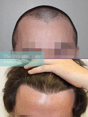 follicular unit transplantation fue hair transplant before after results london dr raghu reddy 033RR