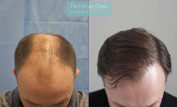 follicular unit transplantation fue hair transplant london before after photo results dr raghu reddy 068RR