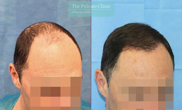 follicular unit transplantation fue hair transplant london before after photos dr raghu reddy side 100RR