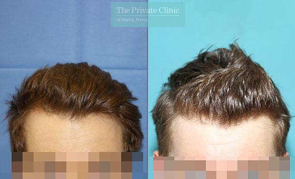 follicular unit transplantation hair before after photos results london dr raghu reddy 014RR front