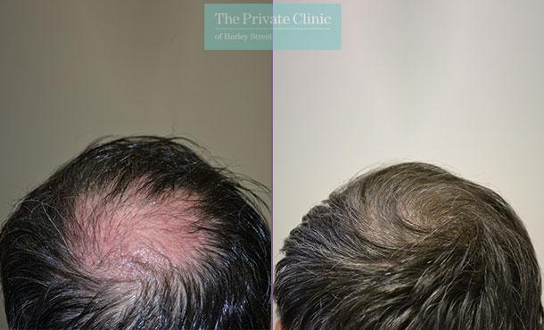 follicular unit transplantation hair transplant before after photo results dr luca de fazio 004LDF