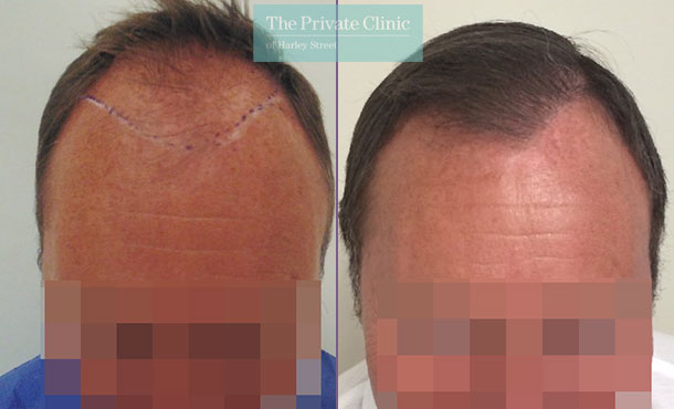 follicular unit transplantation hair transplant before after photos mr michael mouzakis front 005MM