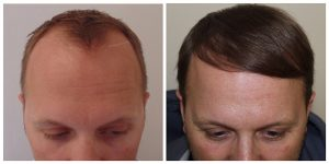 fue hair restoration transplant hair loss manchester before after photos the private clinic 300x150 1