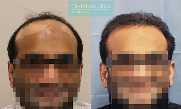 fue hair transplant 5000 grafts before after photo results dr raghu reddy 061RR
