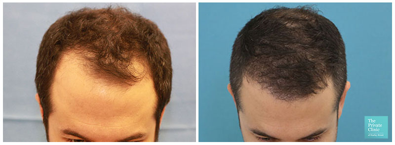 fue hair transplant before after hair restoration results birmingham hair loss clinic