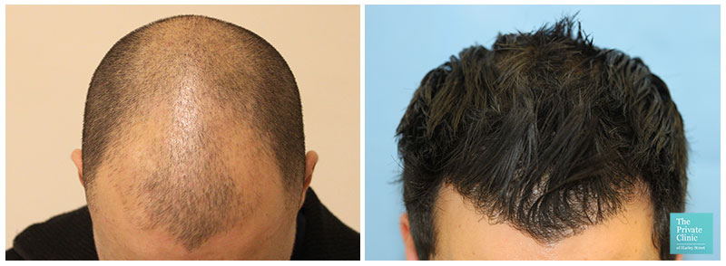 fue hair transplant before after hair restoration results hairline leeds hair loss clinic uk