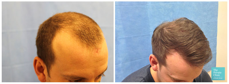 fue hair transplant before after hair restoration results temples hair loss clinic leeds uk