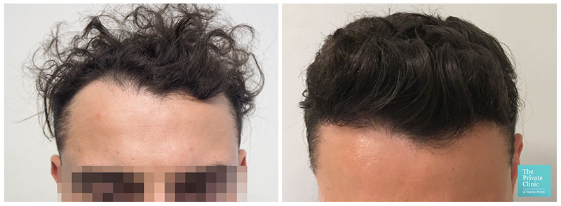 fue hair transplant before after results hair restoration clinic leeds uk