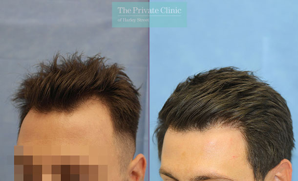 fue hair transplant best surgeons london uk before after photos results dr raghu reddy side 107RR