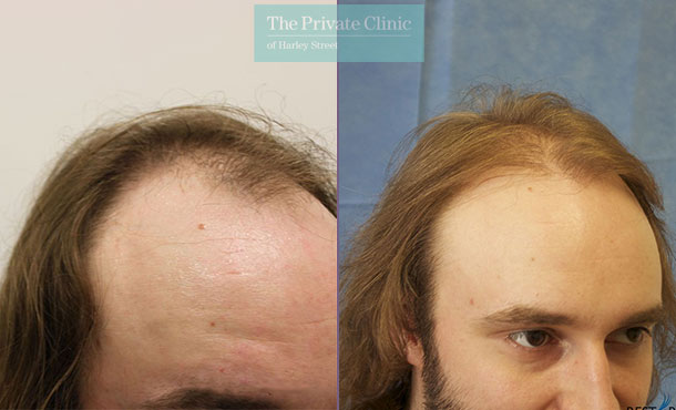 fue hair transplant clinic london before after photos results dr raghu reddy side 079RR