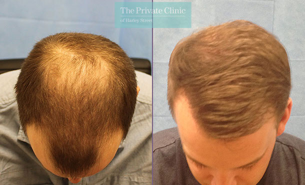 fue hair transplant crown before after photos results dr raghu reddy 069RR