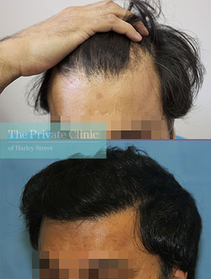 fue hair transplant grafts before after photos london results dr raghu reddy side 101RR