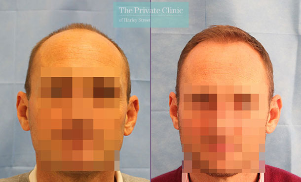 fue hair transplant grafts before after photos uk results dr raghu reddy front 074RR