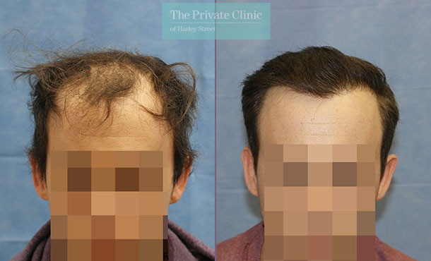 fue hair transplant london before after photos dr raghu reddy 090RR