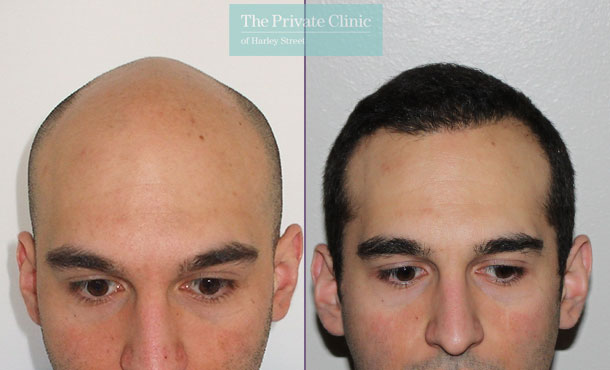 fue hair transplant london harley street before after photo results dr raghu reddy 002RR
