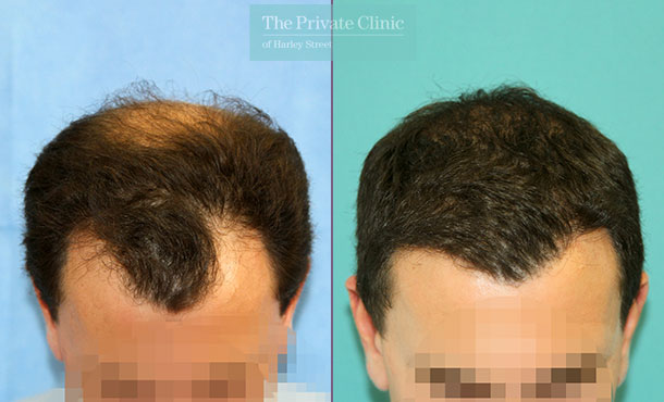 fue hair transplant london harley street before after photos results dr raghu reddy 121RR