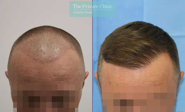 fue hair transplant london harley street before after results dr raghu reddy 059RR