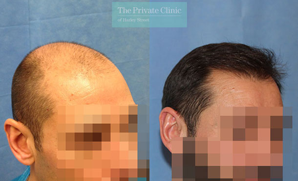 fue hair transplant london harley street clinic before after photos dr raghu reddy 019RR side