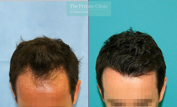 fue hair transplant male harley street before after photo results dr raghu reddy 125RR
