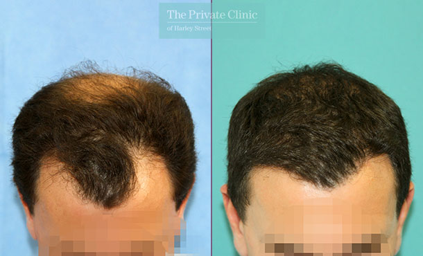 fue hair transplant post procedure before after photos results dr raghu reddy 064RR