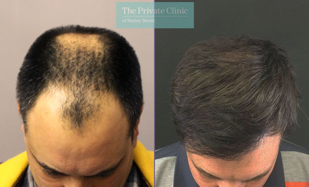 fue hair transplant procedure before after photo results london dr raghu reddy 49RR