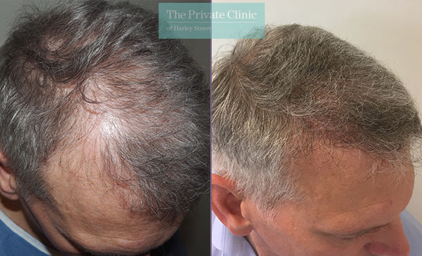fue hair transplant procedure before after photos results mr michael mouzakis side 017MM