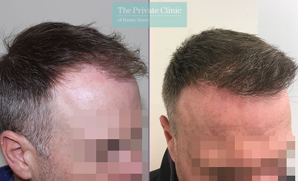 fue hair transplant procedure before after photos uk mr michael mouzakis side 013MM