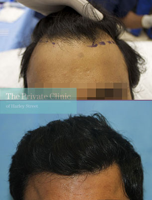 fue hair transplant procedure harley street london before after photos dr raghu reddy front 101RR