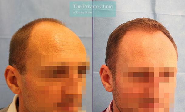 fue hair transplant procedure harley street london before after results dr raghu reddy side 074RR